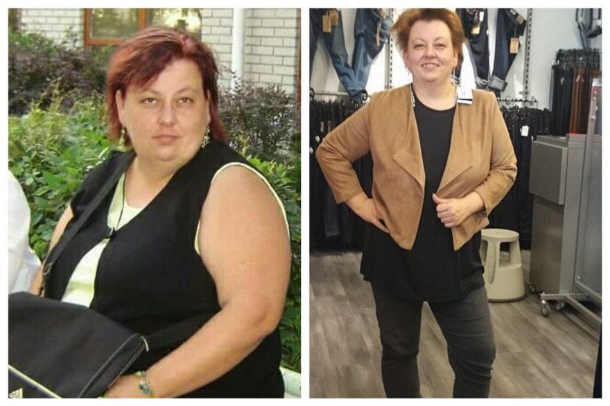 PCOS történetek • 160516 • Cukorbetegség miatt kezdett diétázni, közben 35 kilót fogyott